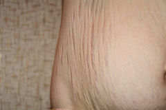 Stretch marks after pregnancy Stock Image
