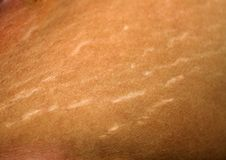 Stretch marks on the skin. Scars on the body. Stretch marks on legs. Cellulite. Stock Images