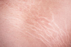 Stretch marks of skin on the thigh. Macro stretch marks of skin on the thigh Stock Images