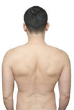 Stretch scars on male back. Back of a man with skin stretch marks isolated on white Royalty Free Stock Photography