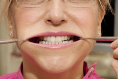 Stretched mouth Stock Images