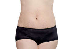 Stretchmarks on woman belly Stock Photo