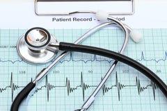 Strethoscope na bicie serca wykresie Obraz Royalty Free