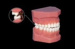 Stridendo dei molari dentari dei denti vicino su immagini stock libere da diritti
