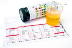 Strisce dell'esame delle urine Fotografie Stock Libere da Diritti