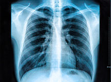 stråle w x för b-bröstkorgbild Arkivbild