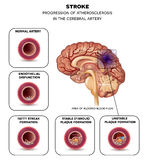 Stroke in the brain artery. Stroke in the cerebral artery, atherosclerosis progression step by step and finnaly thrombus in the artery Royalty Free Stock Photos