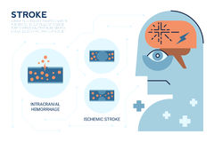 Stroke Brain Disease. Illustraiton of Stroke brain disease, Cerebrovascular Disease (CVD), Cerebrovascular Accident (CVA), Brain attack Stock Photos