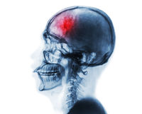 Stroke . Cerebrovascular accident . Film x-ray of human skull and cervical spine . Stock Photo