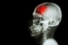 Stroke. (cerebrovascular accident). Film x-ray skull lateral with  and blank area at left side royalty free stock image