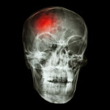 Stroke (cerebrovascular accident). X-ray side of asian skull royalty free stock photo