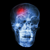 Stroke (cerebrovascular accident). X-ray side of asian skull stock image