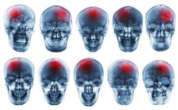 Stroke . Cerebrovascular accident . Set of film x-ray skull royalty free stock image