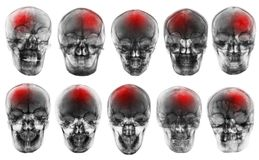 Stroke . Cerebrovascular accident . Set of film x-ray skull Royalty Free Stock Photos