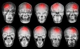 Stroke . Cerebrovascular accident . Set of film x-ray skull Royalty Free Stock Images