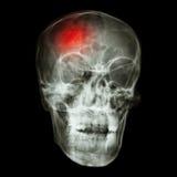 Stroke (cerebrovascular accident)  Royalty Free Stock Photo