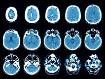 Stroke on computed tomography scans Royalty Free Stock Photography