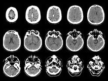 Stroke on CT scans Stock Photography