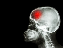 Stroke . film x-ray skull and cervical spine lateral view and stroke . cerebrovascular accident . blank area at left side . Stroke . film x- ray skull and stock photos