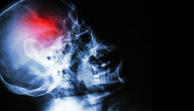 Stroke . film x-ray of human skull lateral view with stroke . blank area at right side Royalty Free Stock Photos