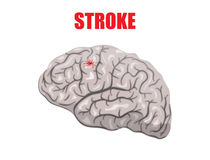 Stroke Stock Images