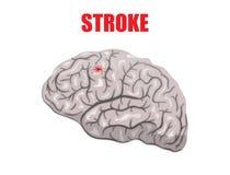 Stroke. Illustration of a hemorrhagic stroke Stock Images