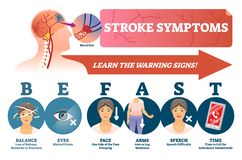 Stroke symptoms vector illustration. Signs of sudden blood clot in head. Stroke symptoms vector illustration. Warnings of sudden blood clot in head. Labeled vector illustration