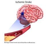 Stroke types poster, banner. Vector medical illustration. white background, anatomy image of damaged human brain stock illustration