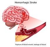 Stroke types poster, banner. Vector medical illustration. white background, anatomy image of damaged human brain royalty free illustration