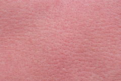 Strong sunburn skin Stock Image