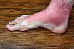 Strong sunburn Royalty Free Stock Image