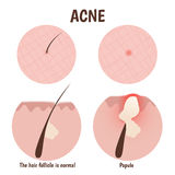 Structure of the hair follicle. Problem skin with papules Stock Images