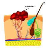 Structure Hemangeoma. The structure of the red mole on the skin. Birthmark. Infographics. Vector illustration on royalty free illustration