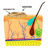 The structure of keratoma. Keratosis. The structure of moles on the skin. Infographics. Vector illustration on isolated vector illustration