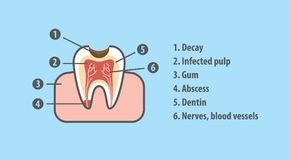 Structure of tooth illustration vector on blue background.. Structure of tooth illustration vector on blue background. Dental concept Royalty Free Stock Photos