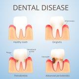 Struktura ludzcy zęby Fotografia Royalty Free
