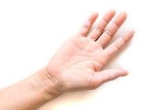 Struttura della pelle di sintomo della dermatite atopica della mano Fotografia Stock Libera da Diritti