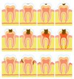 Struttura interna del dente Fotografia Stock Libera da Diritti