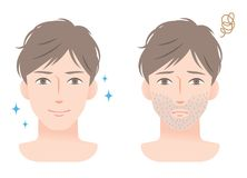 Stubble beard young man before and after shaving Royalty Free Stock Photo