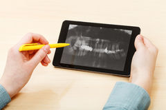 Student analyzes human jaws on tablet pc Royalty Free Stock Image