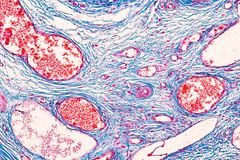 Student learning anatomy and physiology of Ovary under the microscopic. Student learning anatomy and physiology of Ovary under the microscopic in laboratory stock images