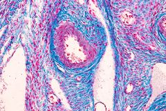 Student learning anatomy and physiology of Ovary under the microscopic. Student learning anatomy and physiology of Ovary under the microscopic in laboratory stock photos