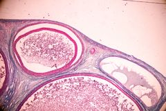 Student learning anatomy and physiology of Ovary under the microscopic. Student learning anatomy and physiology of Ovary under the microscopic in laboratory stock image