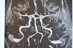 Studie des Gehirns nach einem Anschlag - Neuron Stockfotos