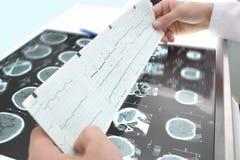 Studie von ECG und von Tomographie stockbild