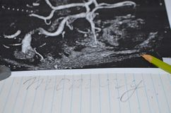 Study of the brain after a stroke - neuron. Macro. Metaphor - the word memory erased on a piece of paper stock photography