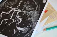 Study of the brain after a stroke - neuron. Macro. Metaphor - the word memory erased on a piece of paper Stock Images