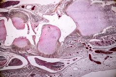Study Histology of human, tissue bone under the microscopic. Study Histology of human, tissue bone under the microscopic in laboratory royalty free stock images