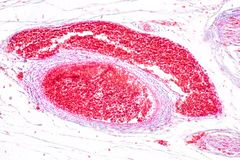 Study Histology of human, tissue bone under the microscopic. Study Histology of human, tissue bone under the microscopic in laboratory royalty free stock image