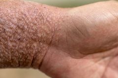 Study of physical of Atopic dermatitis AD, also known as atopic eczema, is a type of inflammation of the skin dermatitis. stock image